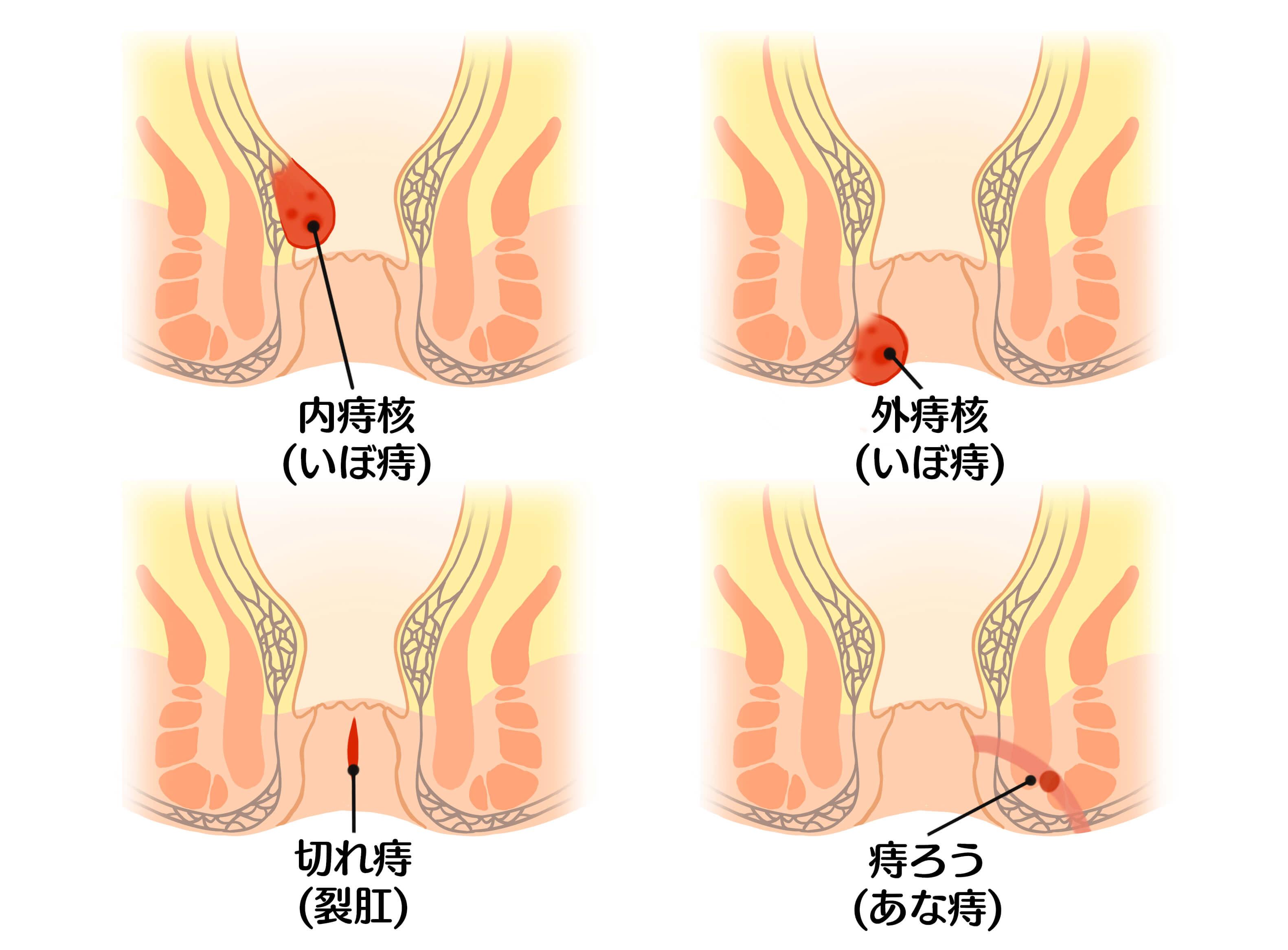 jinosyurui02菫ョ豁」.jpg
