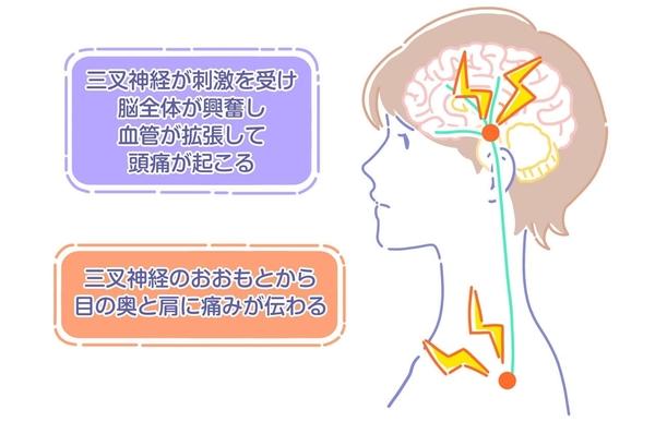 片頭痛_4.jpg