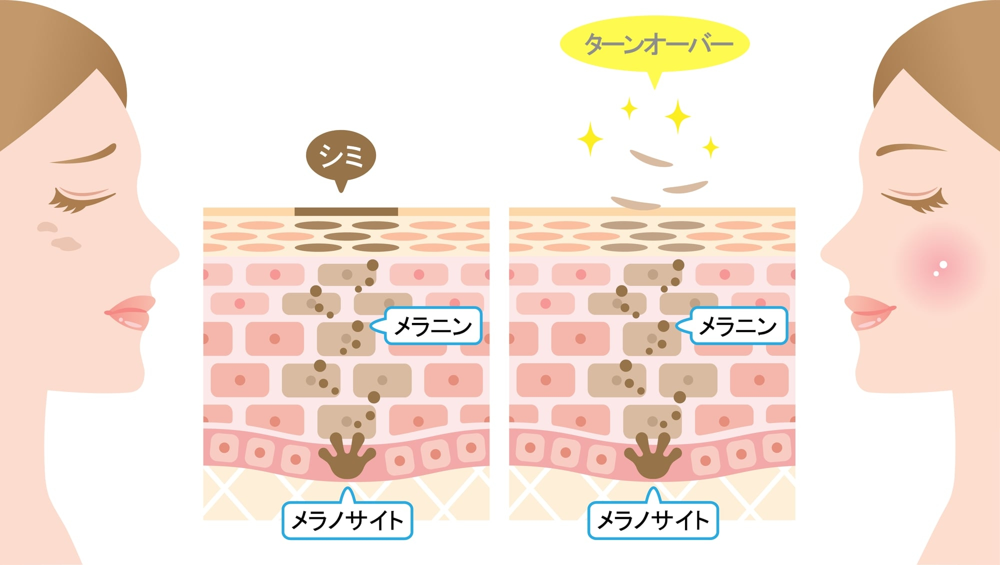シミ食べ物_2-min.jpg