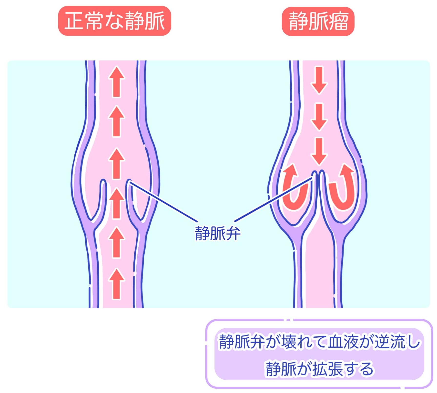 下肢静脈瘤_2-min (トリミング).jpg