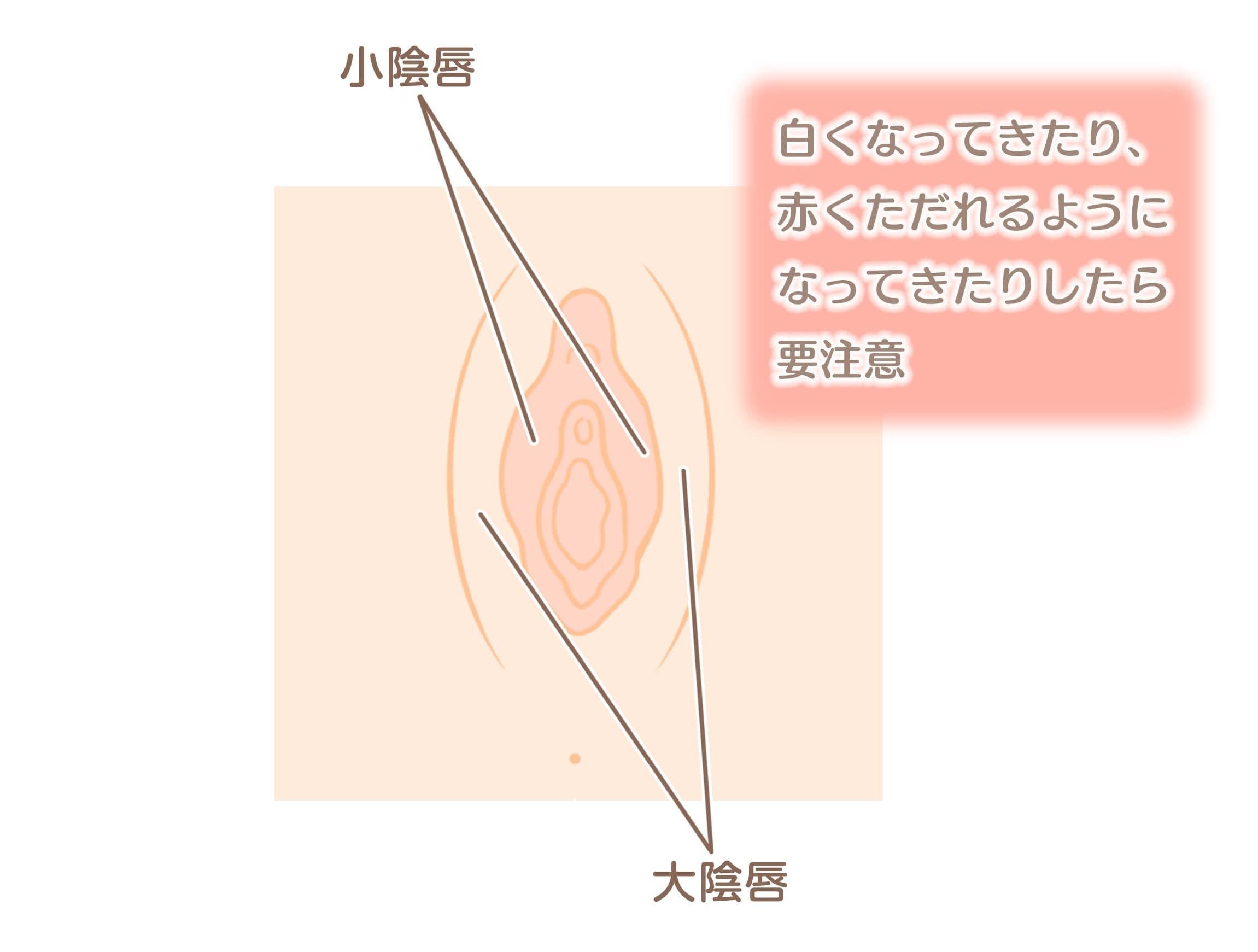 image3 (1)-min.jpeg