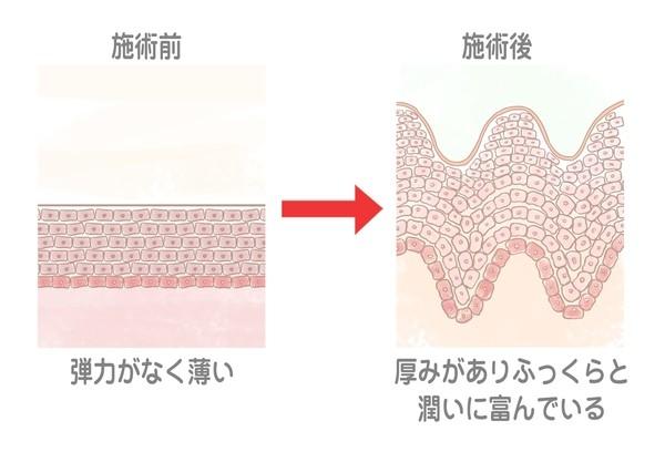 yosikatasensei_03 600free.jpeg